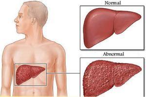 دیابت نوع دوم در کمین مبتلایان به کبد چرب