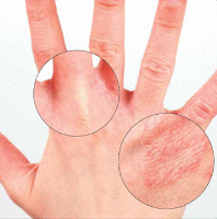 عوارض پوستي ديابت