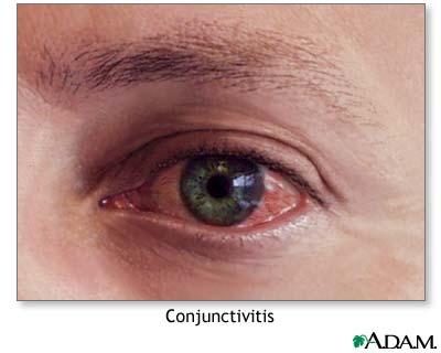 مراقبت از چشمها و پاها در بیماران دیابتی