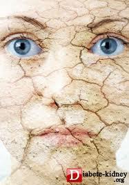 تاثیر دیابت بر پوست