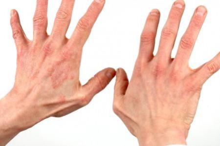 خشکی پوست در بیماران دیابتی
