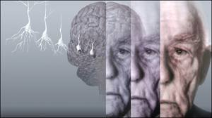 ژن آلزایمر با دیابت مرتبط است